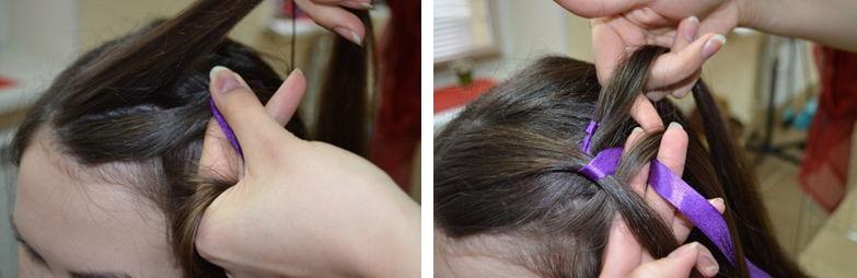 грибок на голове лечение фото у детей