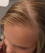Волосы разделяются косым пробором